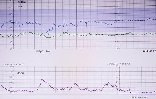 Best EKG Anki Decks